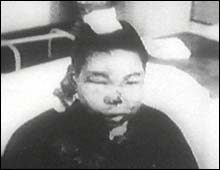 """After having been beaten by a Japanese soldier with an iron bar, this 13-year-old boy was bayoneted in the head,"" noted Magee."